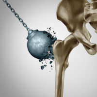 Five Facts For Maintaining Strong Bones